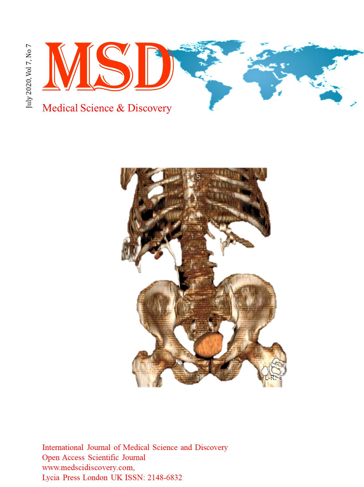 Interntional Journal of Medical Science and Discovery Vol 7 No 7